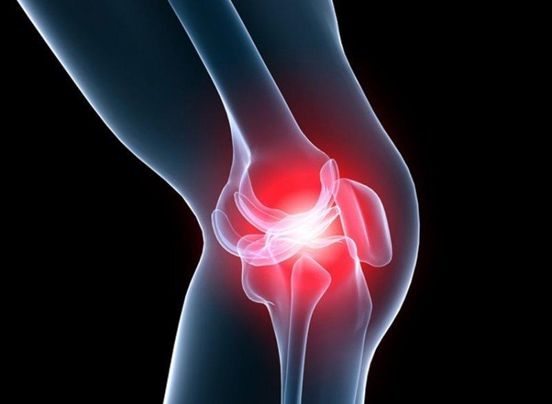 tampoane genunchi pentru tratamentul artrozei suplimente pentru articulatii