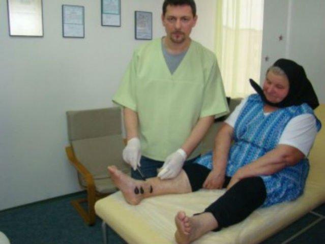 Femeie băgată în spital de lipitorile terapeutice