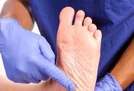 mâncărime la nivelul picioarelor inferioare noaptea durerea severă la nivelul picioarelor cauzează