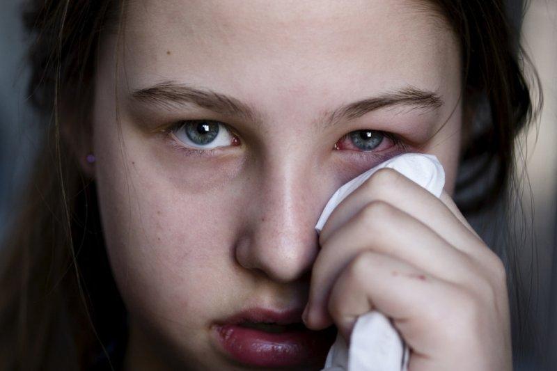 mâncărime a ochilor vedere deteriorată infecție
