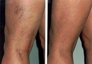 fotografie înainte și după scleroterapie varicoză