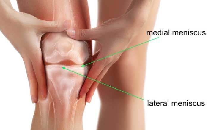 ruperea meniscului medial al tratamentului conservator al genunchiului)