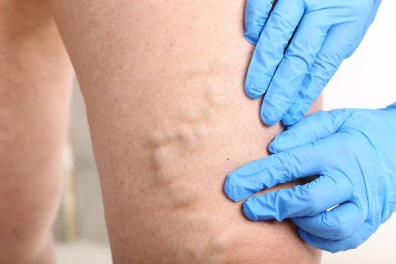 metode moderne de tratament a venelor varicoase venelor