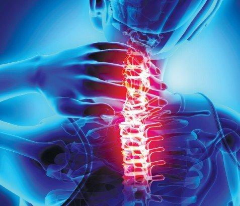 Durerile din zona cervicală pot fi însoţite de ameţeală şi cefalee