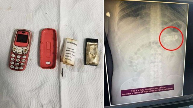 Un medic a scos un telefon marca Nokia 3310 din stomacul unui deţinut