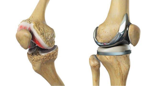 Gonartroza apare prin degradarea cartilajului articular de la nivelul genunchiului