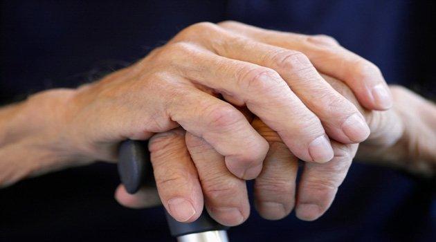 artrita reumatoidă recenzii unde să se trateze