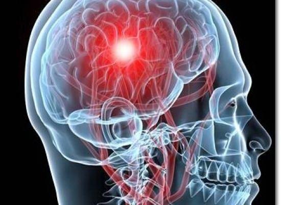 Genu recurvatum la pacientul cu accident vascular cerebral-AVC - PostAVC